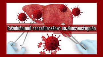 ไวรัสตับอักเสบบี อาการกับการรักษา และอันตรายกว่าคุณคิด