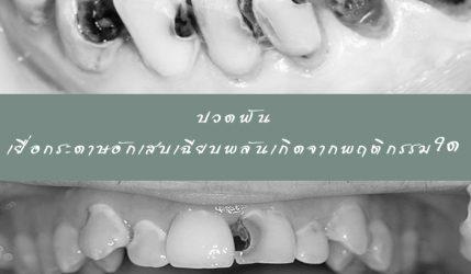 ปวดฟัน เยื่อกระดาษอักเสบเฉียบพลันเกิดจากพฤติกรรมใด