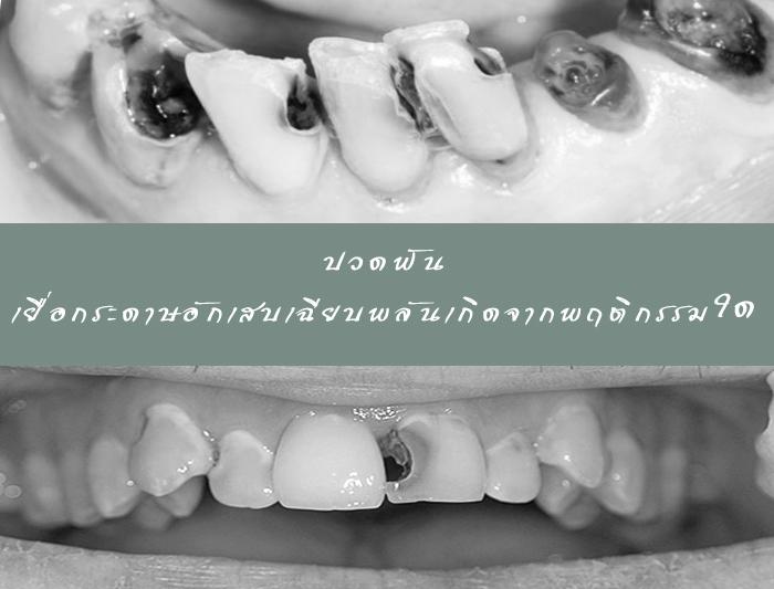 ปวดฟัน