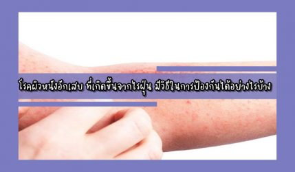 โรคผิวหนังอักเสบ ที่เกิดขึ้นจากไรฝุ่น มีวิธีในการป้องกันได้อย่างไรบ้าง